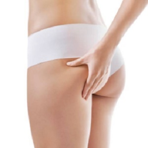 Can I Reduce Cellulite Without Surgery?